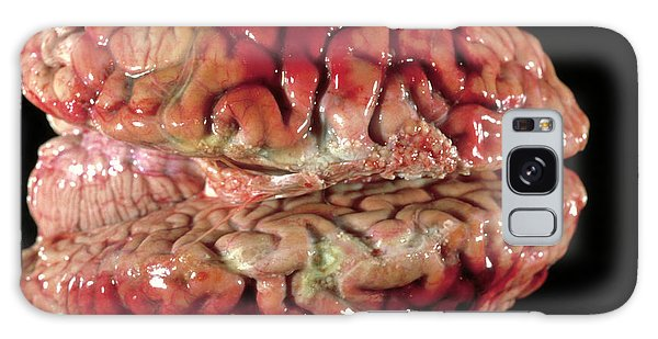 Cerebral Galaxy Case - Bloody Brain Membranes by Cnri/science Photo Library