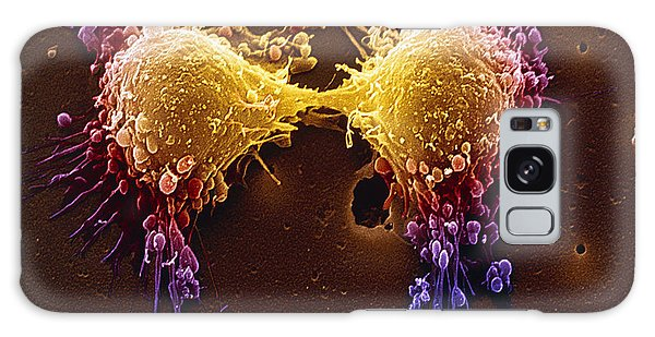 Cancer Cell Division Galaxy Case