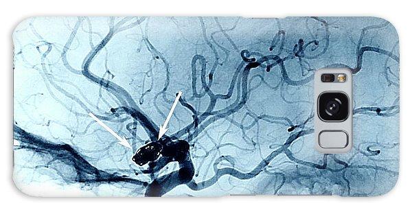 Cerebral Galaxy Case - Cerebral Aneurysm Treatment by Zephyr/science Photo Library