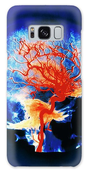 Cerebral Galaxy Case - Cerebral Arteries by Alain Pol, Ism/science Photo Library