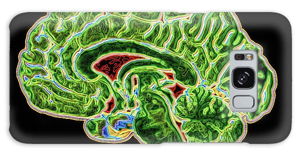 Brainstem Galaxy Case - Coloured Ct Scan Of A Healthy Brain (side View) by Pasieka
