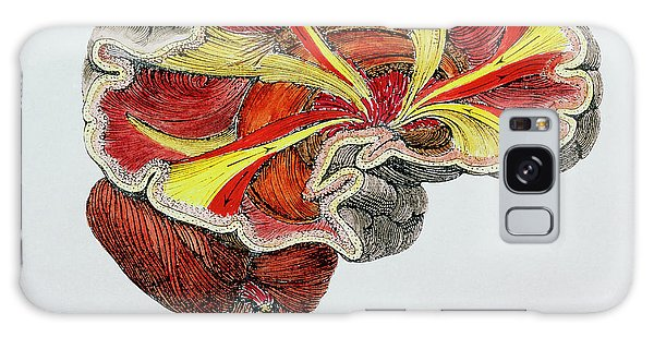Cerebral Galaxy Case - Coloured Engraving Of A Cross-section Of The Brain by Science Photo Library