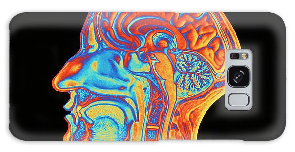 Brainstem Galaxy Case - Coloured Mri Scan Of The Human Head (side View) by Pasieka