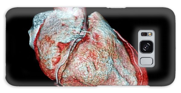 Human Rights Galaxy Case - Coronary Arteries by Zephyr