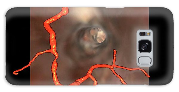 Human Rights Galaxy Case - Coronary Stenosis by Zephyr
