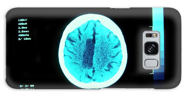Cerebral Galaxy Case - Ct Brain Scan Showing Cerebral Infarction - Stroke by Simon Fraser/science Photo Library
