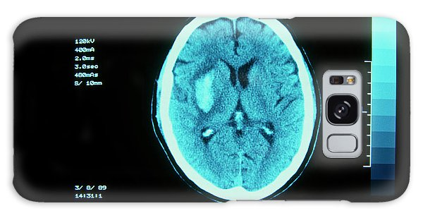 Cerebral Galaxy Case - Ct Scan Of Cerebral (intracranial) Haemorrhage by Simon Fraser/rvi, Newcastle/science Photo Library
