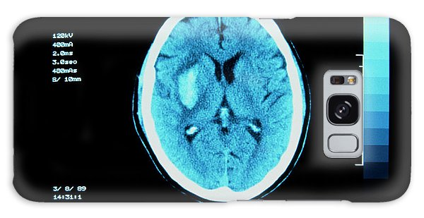 Cerebral Galaxy Case - Ct Scan Of Cerebral (intracranial) Haemorrhage by Simon Fraser/science Photo Library