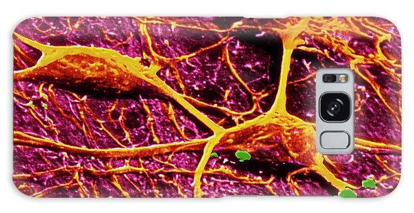 Cerebral Galaxy Case - False-col Sem Of 3 Neurones Of Cerebral Cortex by Cnri/science Photo Library