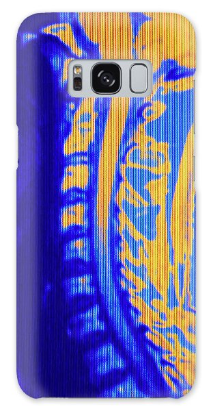 Brainstem Galaxy Case - False-colour Nmr Image Showing The Neck Region by Mehau Kulyk/science Photo Library