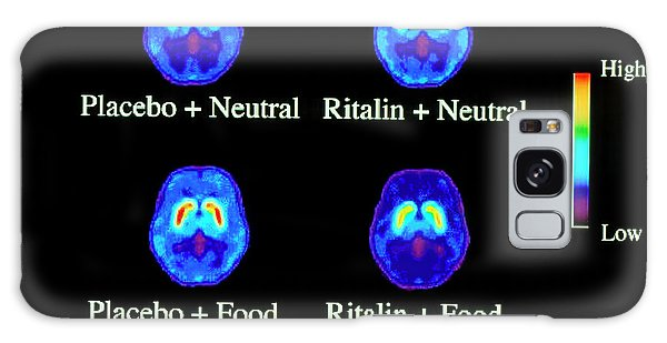 Cerebral Galaxy Case - Food Addiction Brain Research by Brookhaven National Laboratory/science Photo Library