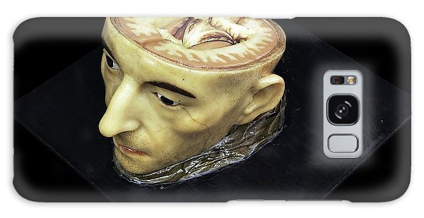 Anatomical Model Galaxy Case - Head And Brain Model by Javier Trueba/msf