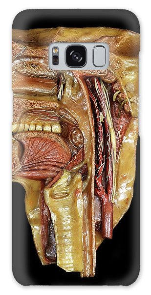 Anatomical Model Galaxy Case - Head And Throat Model by Javier Trueba/msf