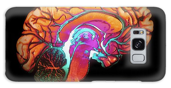 Brainstem Galaxy Case - Human Brain by Gjlp/cnri