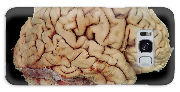 Brainstem Galaxy Case - Human Brain by Tissuepix/science Photo Library