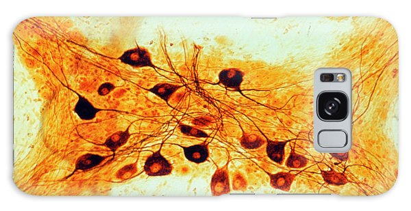 Nervous System Galaxy Case - Lm Of Nerve Cells In Autonomic Nervous System by Biophoto Associates/science Photo Library