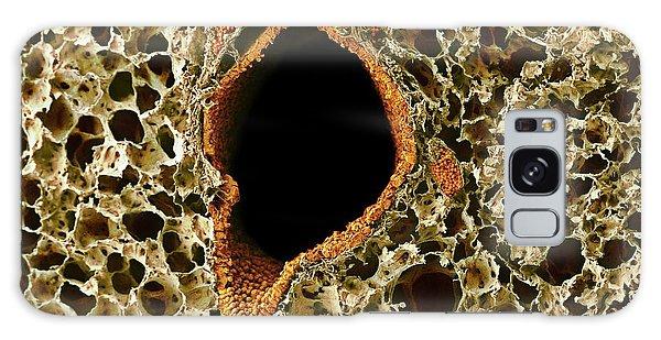 Tissue Galaxy Case - Lung Tissue by Microscopy Core Facility, Vib Gent