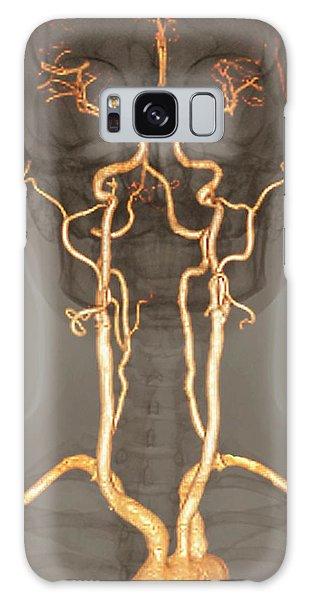 Cerebral Galaxy Case - Normal Arteries by Zephyr/science Photo Library