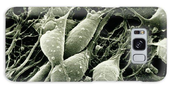 Cerebral Galaxy Case - Sem Of Neurones From The Human Cerebral Cortex by Cnri/science Photo Library
