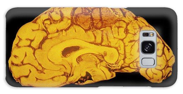Cerebral Galaxy Case - Specimen Human Brain Showing Haemorrhage by Cnri/science Photo Library