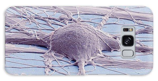 Controversial Galaxy Case - Stem Cell-derived Neuron by Thomas Deerinck, Ncmir