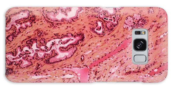 Tissue Galaxy Case - Stomach Metaplasia by Cnri