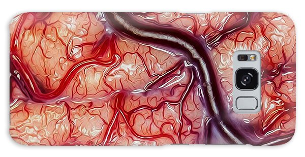 Repulsive Galaxy Case - Visceral Entrapment by Bruce Stanfield