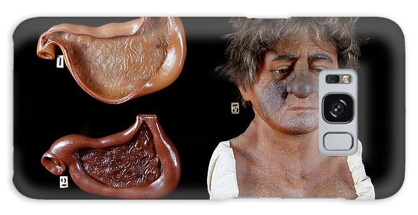 Anatomical Model Galaxy Case - Wax Model Of The Effects Of Alcohol by Gregory Davies