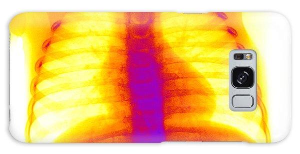 Swallowed Nail Galaxy Case by Ted Kinsman