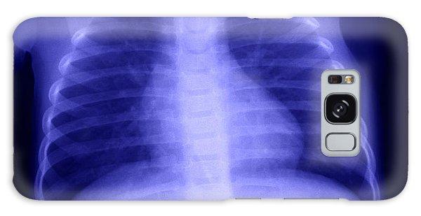 Swallowed Nail Galaxy Case