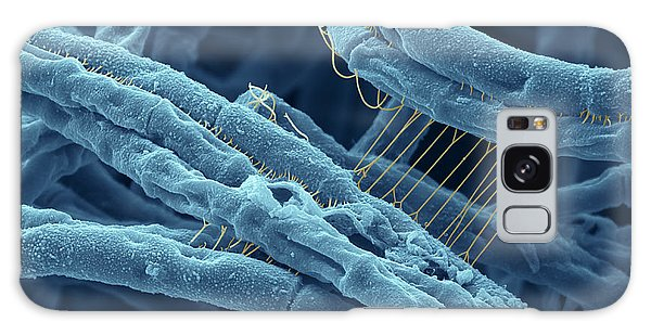 Anthrax Bacteria Sem Galaxy Case by Eye Of Science and Photo Researchers