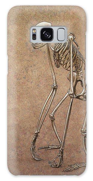 Bone Galaxy Case - Patient by James W Johnson