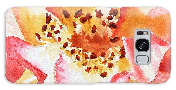 Hyper-realistic Galaxy Case - Rose Close Up Painting By Irina Sztukowski by Irina Sztukowski