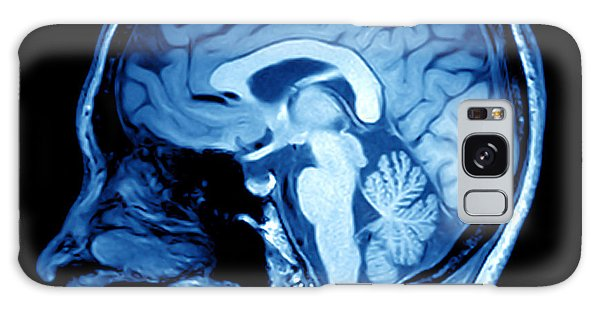 Patient Galaxy Case - Magnetic Resonance Image Mri Of The by Mriman