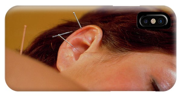 Well Being iPhone Case - Acupuncture by Michael Donne/science Photo Library