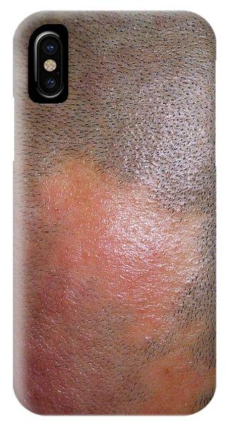 Alopecia Phone Case by Dr P. Marazzi/science Photo Library