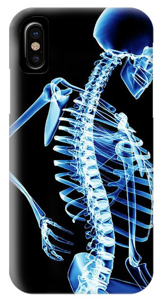 Back Pain Phone Case by Pasieka