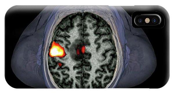 Brain Tumour IPhone Case