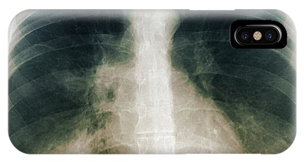 Chest Infection Phone Case by Zephyr