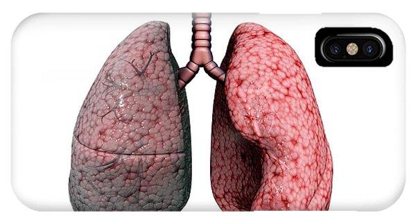 Chronic iPhone Case - Chronic Obstructive Pulmonary Disease by Gunilla Elam/science Photo Library