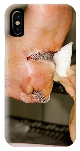 Dressing iPhone Case - Dressing Melanoma Excision Wound by Dr P. Marazzi/science Photo Library
