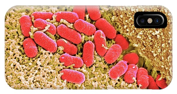 Micro-organisms iPhone Case - Ehec Bacteria On Human Colon Tissue by Stephanie Schuller/steven Lewis/science Photo Library
