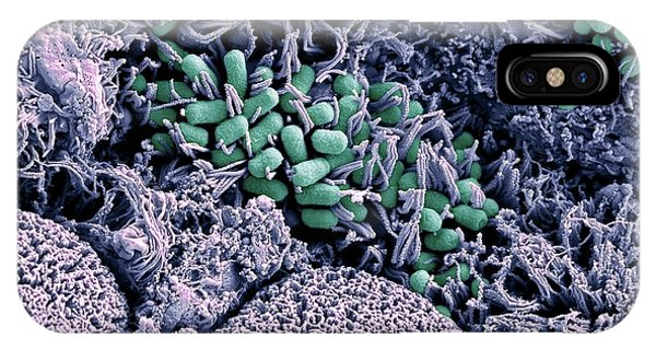 Micro-organisms iPhone Case - Ehec Bacteria On Small Intestine Tissue by Stephanie Schuller/steven Lewis/science Photo Library