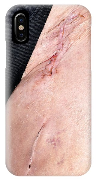 Endarterectomy Wound Phone Case by Dr P. Marazzi/science Photo Library