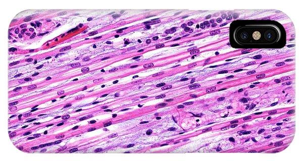 Fetal Skeletal Muscle Phone Case by Microscape