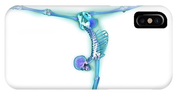Gymnast Balancing On A Beam Phone Case by Gustoimages/science Photo Library