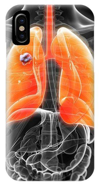 Human Lung Cancer Phone Case by Sebastian Kaulitzki