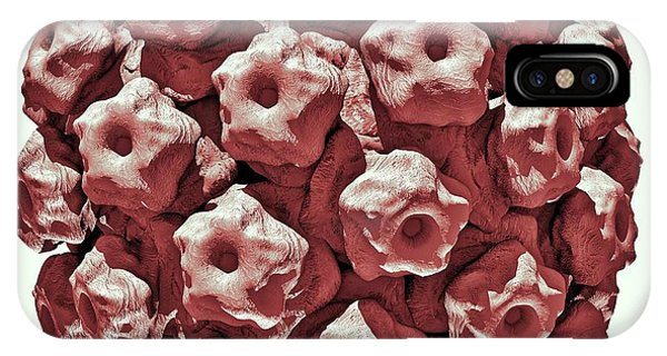 Virus iPhone Case - Human Papilloma Virus Particle by Russell Kightley