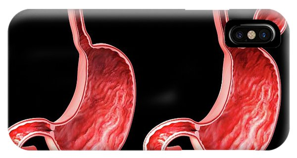 Esophagus iPhone Case - Human Stomach With Hernia by Pixologicstudio