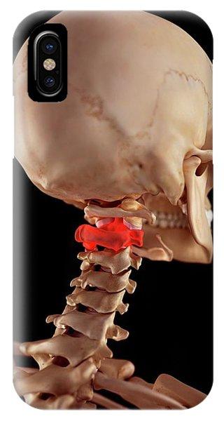 Human Upper Neck Pain Phone Case by Sebastian Kaulitzki/science Photo Library
